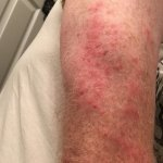 Picture of my arm after bed bug attack.