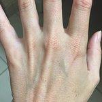 non-swollen left hand (unbitten)