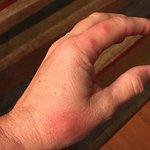 Beg bug bites