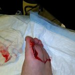 My cut foot from the cermic broken tile when I stepped from the hot tub.