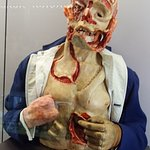 Plastic surgery needed