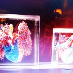 Heart and lung circulation