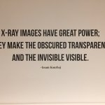 Issam Kourbaj on x-ray images