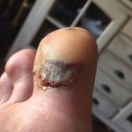 Toe hurt on entry to hotel