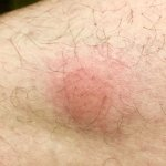 bedbug bite