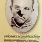 Famous private who benefited from the Civil War era medical interventions.