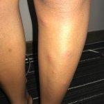 Flea bites on legs and feet
