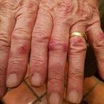 bed bug bites from Days Inn, Grants, NM.