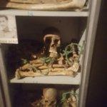 Bones of Derg victims