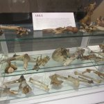 Here are some samples of human bone collection