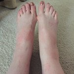 Feet swollen from bites received in room.
