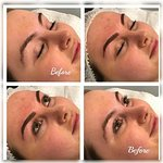 Cosmetic Eyebrow Tattoo