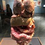 Interior organs of a human body