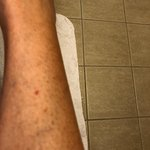 Bed bug bites from Luxor room 9072