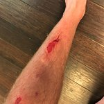 Injury from fall over dark table
