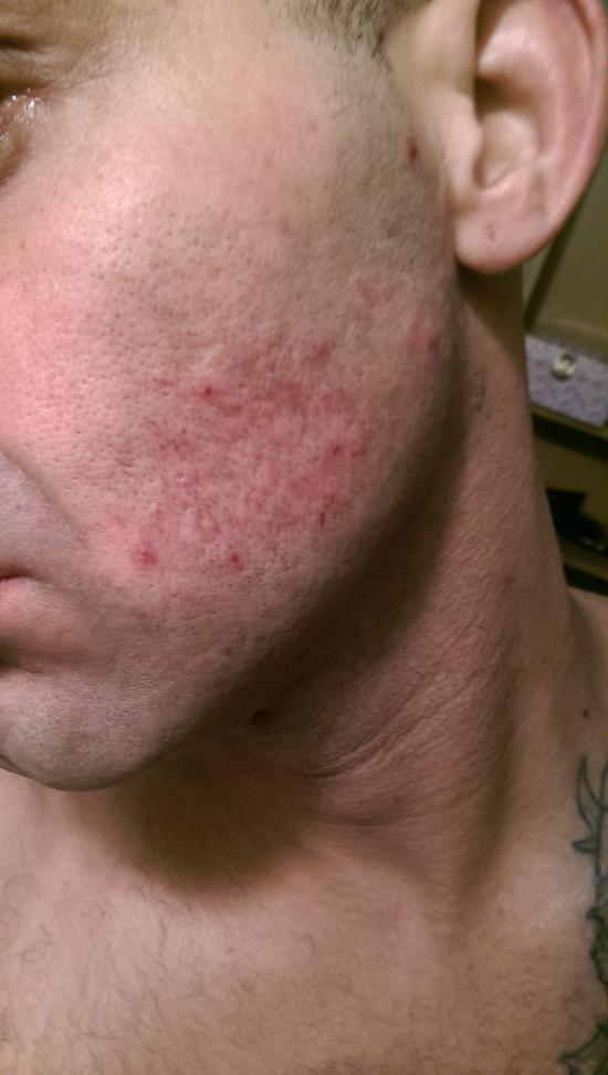 left side of face bites