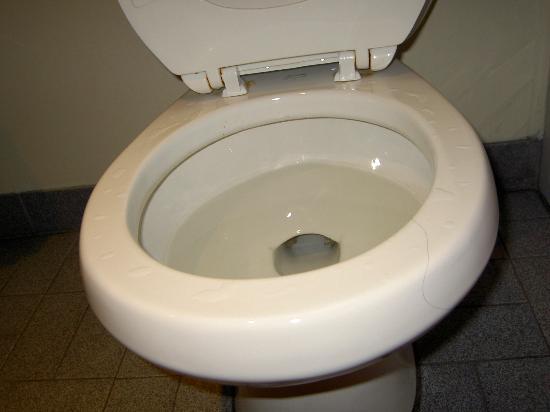 Days Inn Toronto East Beaches : hair and brown marks on toilet