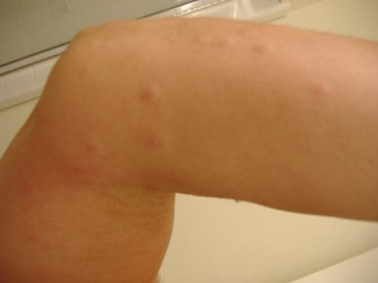 Bakersfield, Californië: bed bug bites scabies and infection