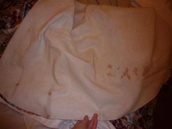 Regency Court Hotel: bloodstained sheets