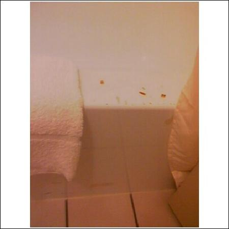 Econo Lodge Takoma Park : burns on tub