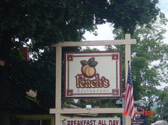 Peach's Sign