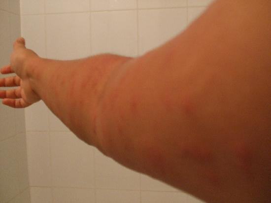 Pegasus Hotel Guyana: My right arm after being bitten by a type of bed-bug/mite in the pillows of the bed in Room 607