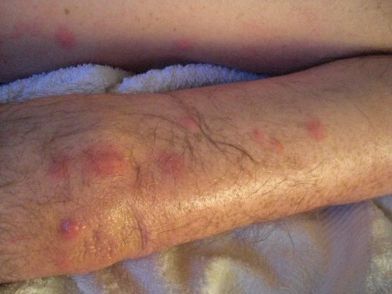 Stroud, UK: Bed Bug Bites - ouch!