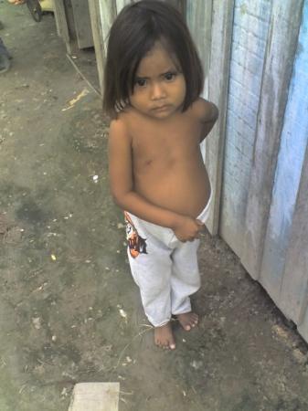 Oran, อาร์เจนตินา: Niña desnutirida de Barrio 6 de enero