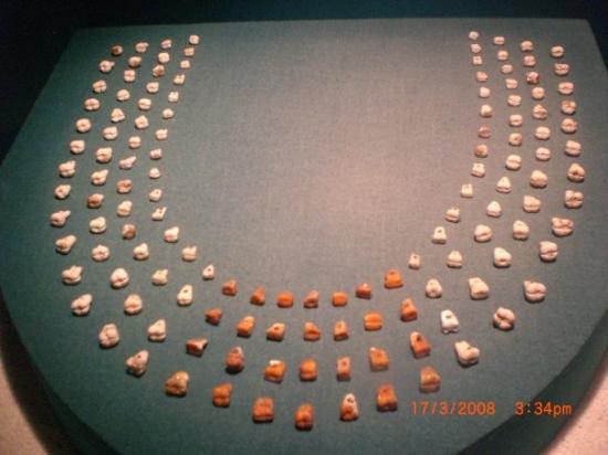 เม็กซิโกซิตี, เม็กซิโก: Et oui,ce sont bien des dents...