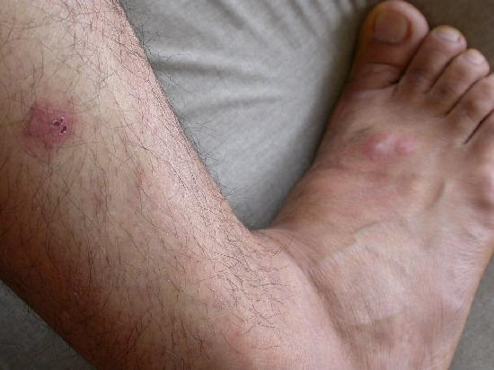 Hotel 31: Foot & Calf 2 bites