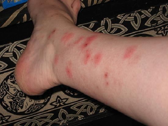 New Stanton, Pensilvanya: my marks from bed bugs in the am