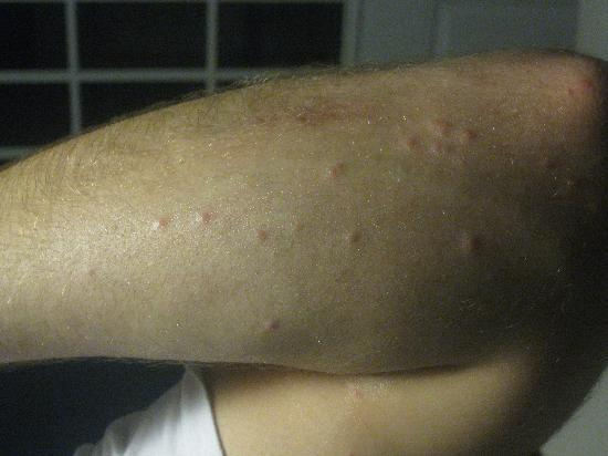Crowne Plaza Hotel Philadelphia Cherry Hill Bed Bug Bites
