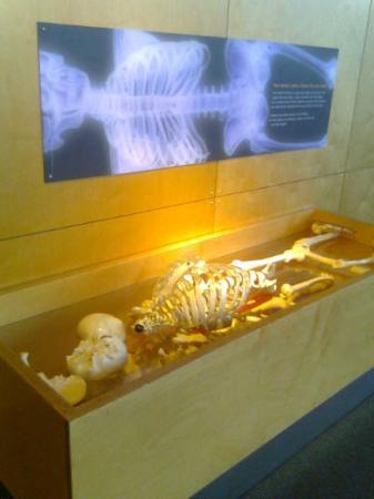 Maryland Science Center: Can you set the bones in the right order?