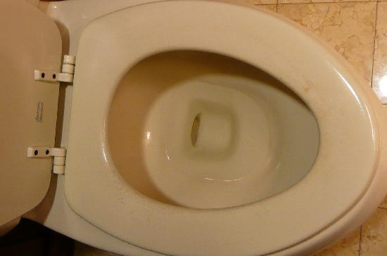 Conrad Bora Bora Nui: DISGUSTING TOILET SEAT WORN AND STAINED