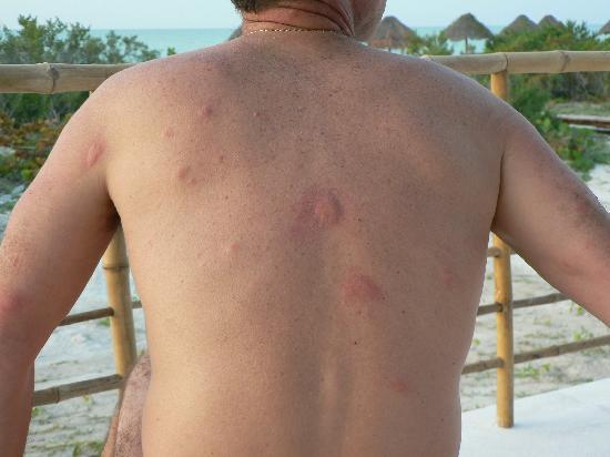 Hotel Xixim: My back after 5 minutes at the pool
