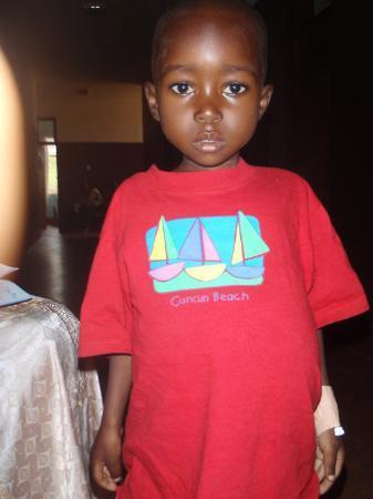 Kibungo, Rwanda: the cutest splenomegaly kid EVER!!