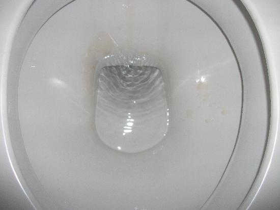 Parkview Hotel Sydney: Disgusting toilet, look closely at the left side especially