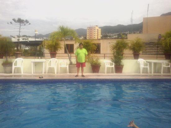 Acapulco Diana: Alberca con vista a la montaña