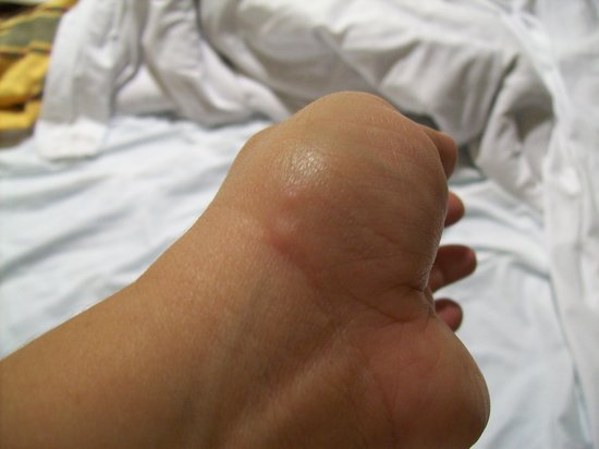 Bedbugs Slideshow - WebMD