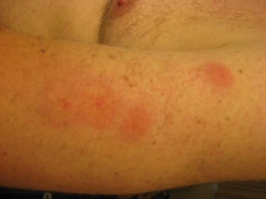 I Got Bed Bug Bites At A Hotel Now What