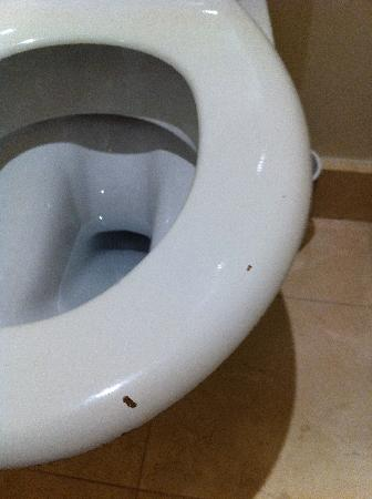 The Westin Paris - Vendome: Chipped toilet seat
