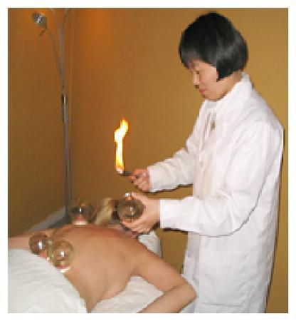 Back In Motion Therapetic Massage: Cupping