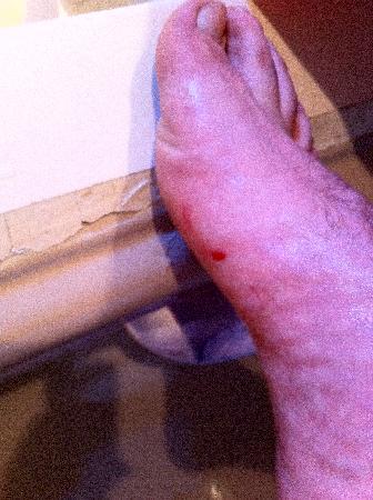 Hotel Arcipreste de Hita: daño con la bañera