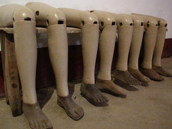 เวียงจันทน์, ลาว: New limbs for cluster bomb victims