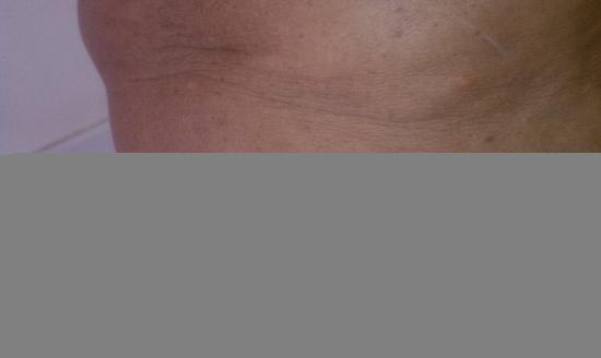 Presidente Inter-Continental Cozumel Resort & Spa: bedbug bites