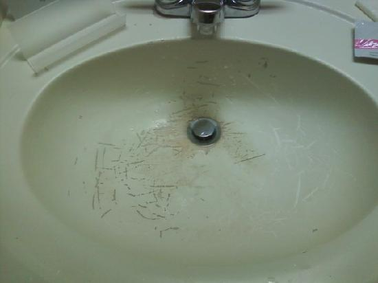 Sleep Inn at North Scottsdale Road: Sink from hell!