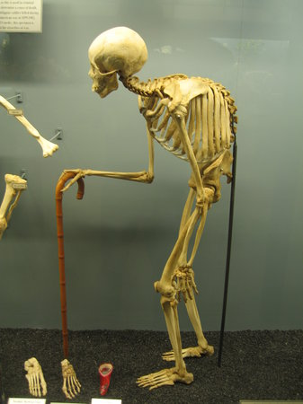 Museum of Osteology : Kyphosis