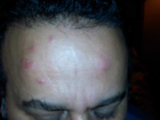 Chariot Inn: BED BUG BITES ON FOREHEAD AND FACE