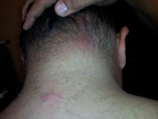Chariot Inn: BED BUG BITES ON BACK OF NECK AND BACK
