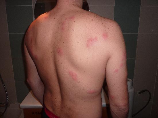 Hotel Hauteville Opera : Bed Bugs!